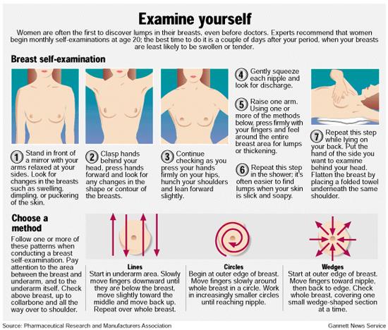 self-breast-exam